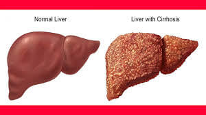 Treatment of Cirrhosis of Liver, Cure for Cirrhosis, Cirrhosis of the Liver  Treatment