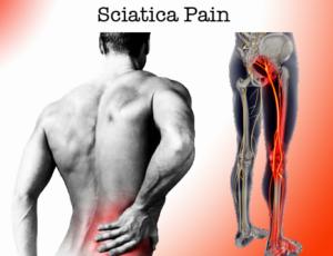 how to cure sciatica