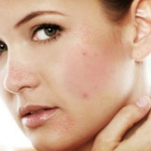 Home Remedies For Skin Problems