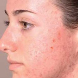 Secret Home Remedies For Skin Disorders That Show Quick Results!