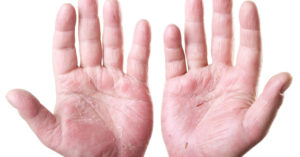 Herbal And Natural Remedies Eczema