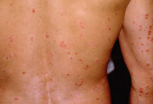 Fast Acting Psoriasis Herbal Remedies And Natural Cure
