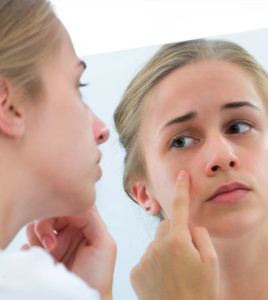 home remedies for skin problem
