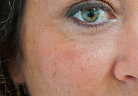 How Dark , Black Or Age Spots On Face Occur?