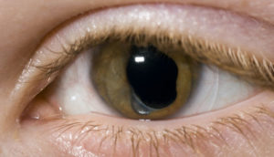 Symptom Of Cataract