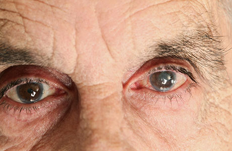 Do Herbal Solutions Helps In Betterment Of Cataracts?