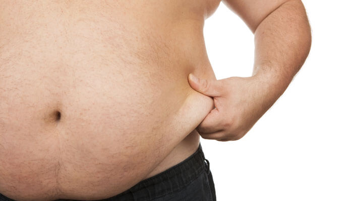 What Things Constitute Natural Obesity Treatment and Management Program?