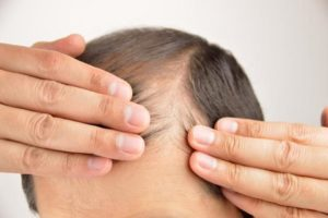 Herbal Remedies to Stop Hair Falling From The Roots